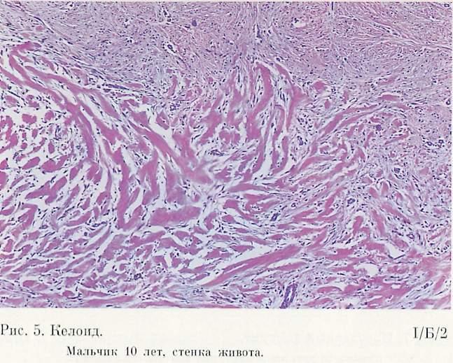 Неврилеммома фото