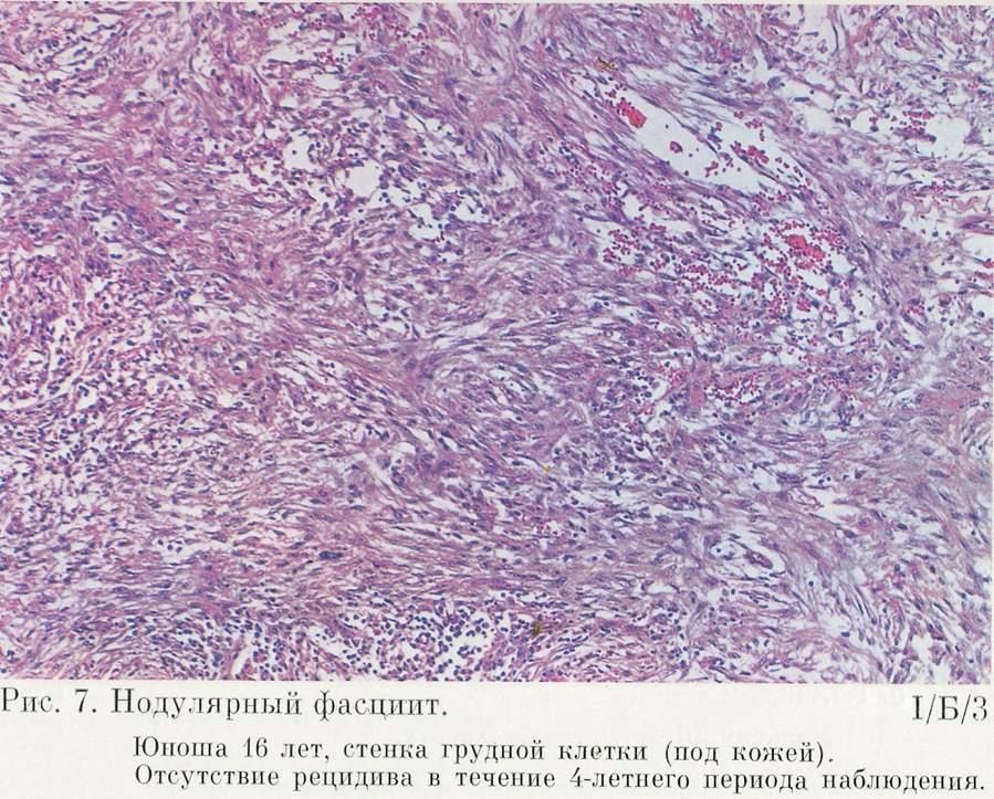 Эндотелиома фото